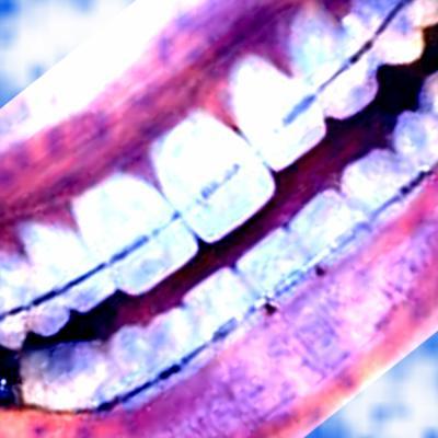 http://je-suis-un-morse.cowblog.fr/images/815602403small.jpg